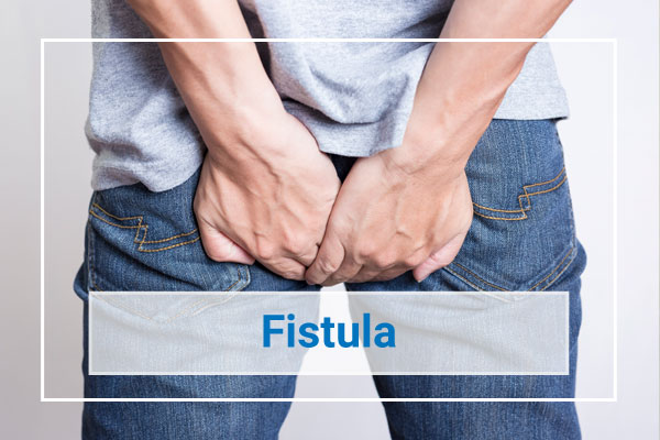 Fistula Treatment